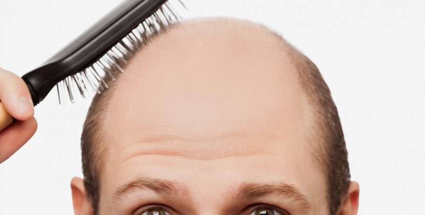 What is Hair Loss?